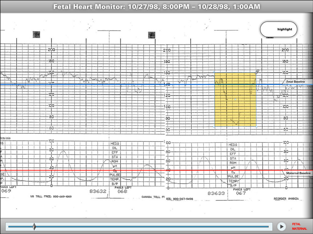 Interactive or static fetal heart monitor strip graphics.