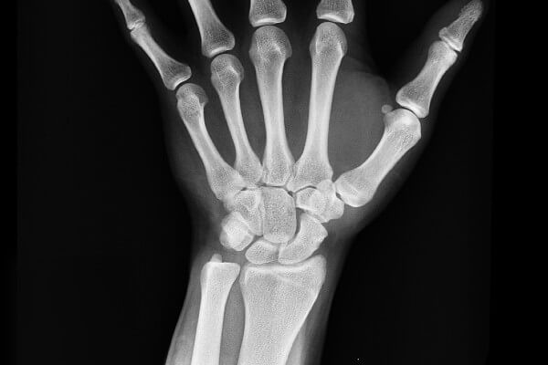 Image of a physical x-ray